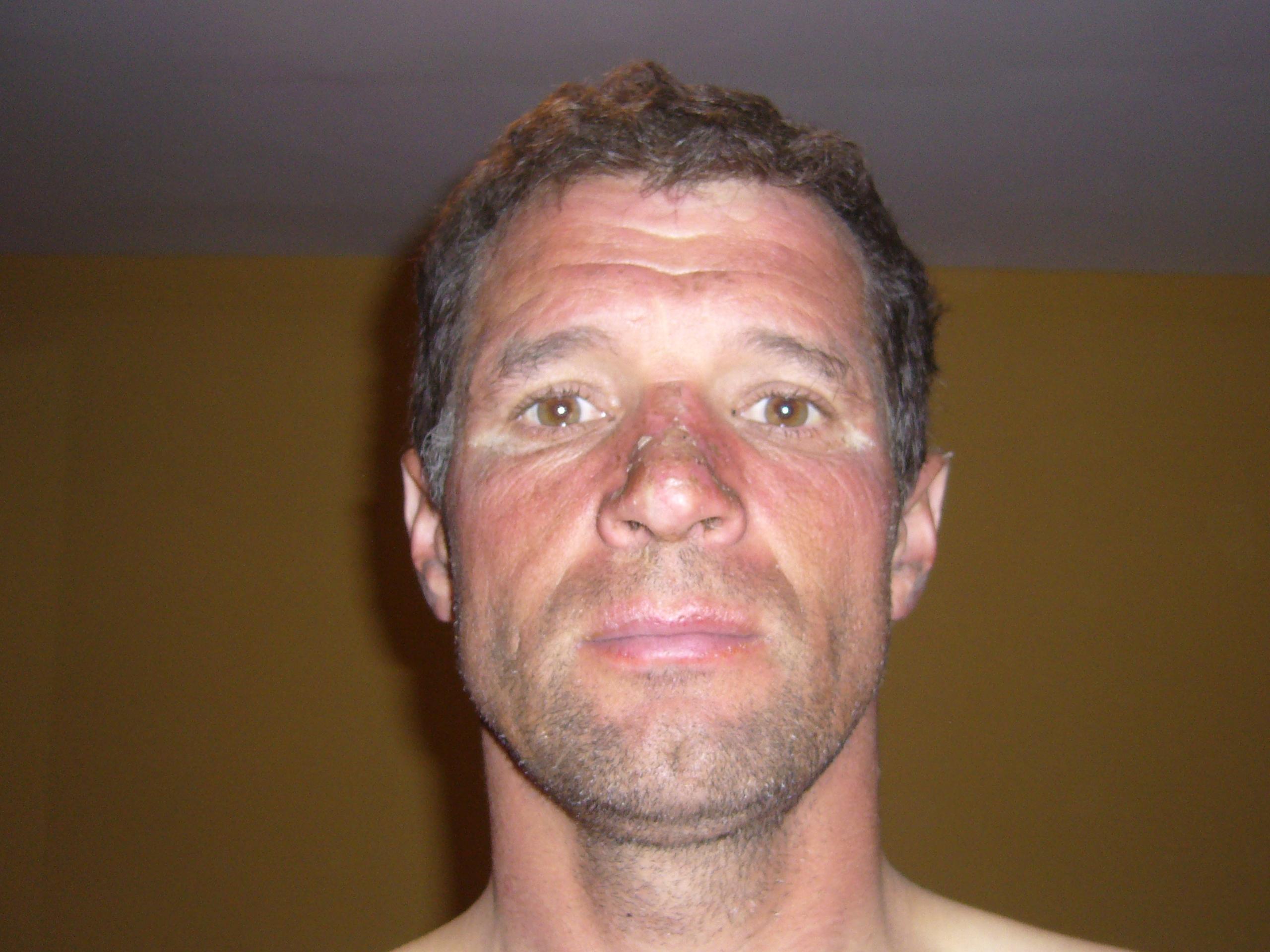 Radreise Peru 2008 - Sonnenbrand